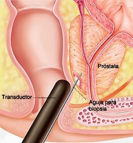 Biopsia de próstata - Prostaffect сumpără