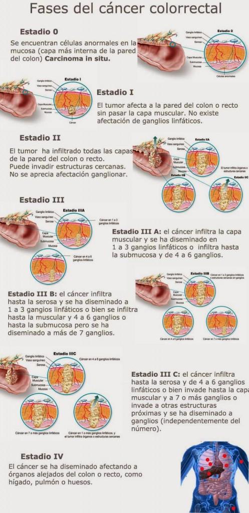 Fases del cáncer colorrectal - Salud