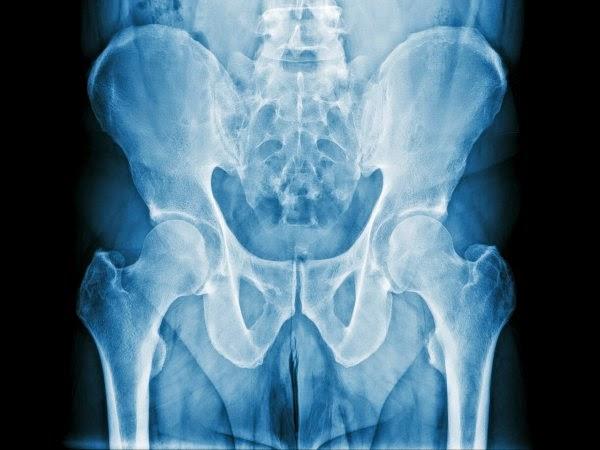 metastasis de prostata a hueso
