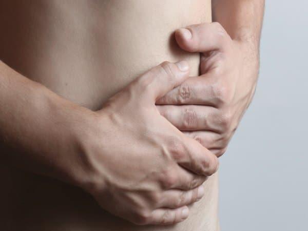 ¿Qué es una hernia paraestomal?