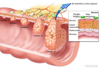 Estadios del cáncer de colon