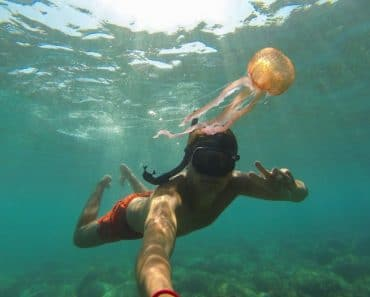 Picaduras de medusa en niños, ¿qué hacer?