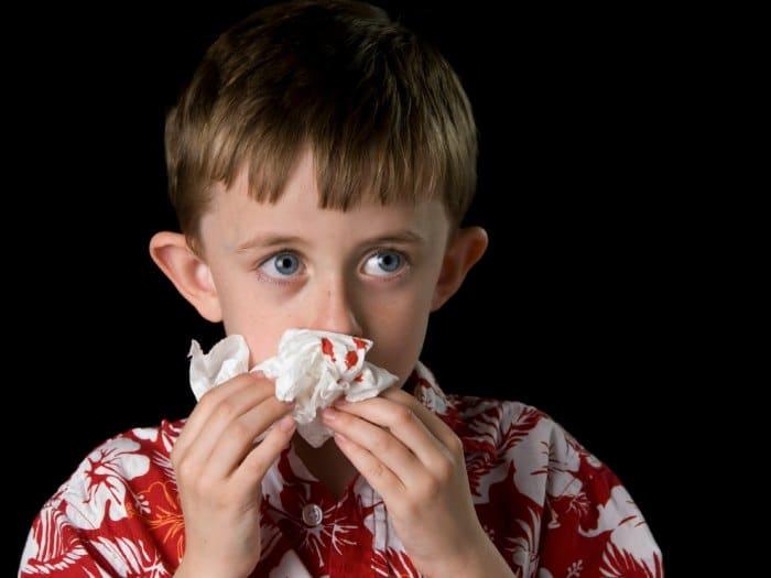 sangrado-nasal-niños-euroresidentes