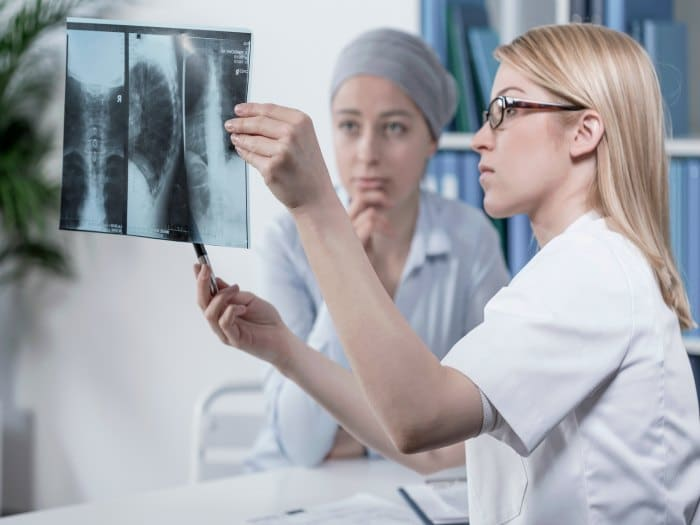 La metastasis osea se puede curar