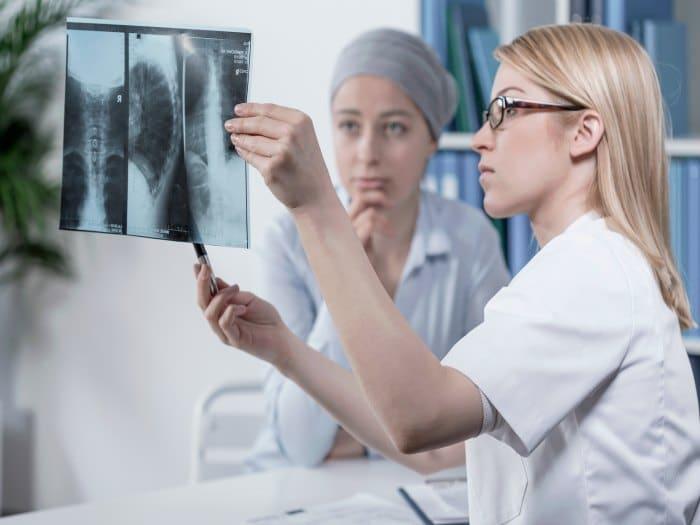 Metástasis en pacientes con cáncer de colon